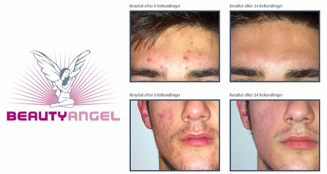 Beauty Angel Collagen lysbehandling inkl. EMT maske - maks 19 år